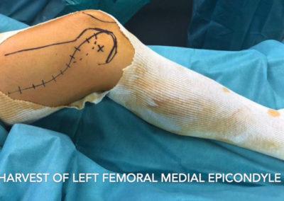 Lambeau de condyle medial femoral