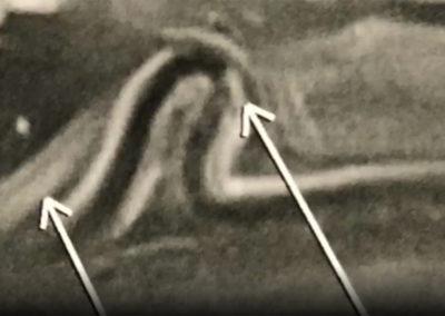 Paralysie nerf ulnaire