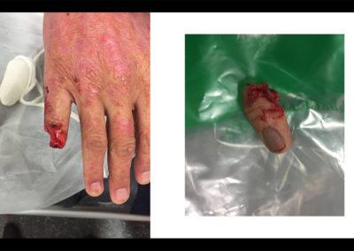 Réimplantation du 5ème doigt, mécanisme d'arrachement par bague: Ring Finger