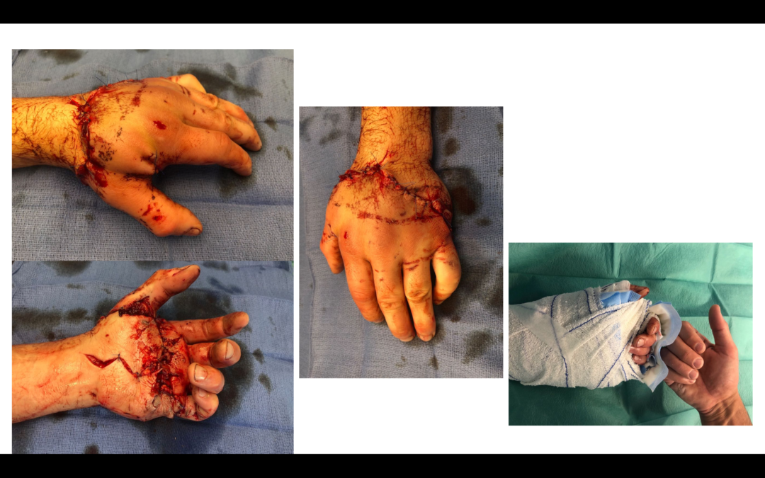 Réimplantation de main sur amputation trans-métacarpienne