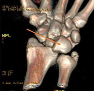 Réparation de fracture luxation rétro-lunaire du carpe
