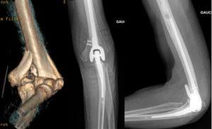 Reconstruction et/ou ostéosynthèse du coude par prothèse totale