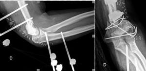Reconstruction perte substance osseuse
