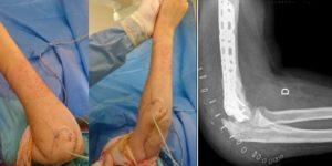 Exérèse d'ossifications hétérotopiques et arthrolyse du coude