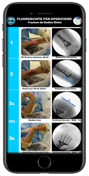 Educational & Surgical Evidence-Based Guidelines for Your Smartphone