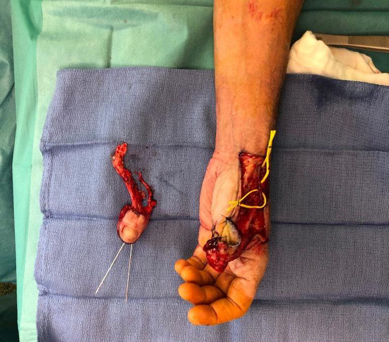 transfert d'orteil: wrap around, reconstruction du pouce